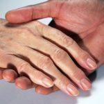 """""""HOT"""" 3 cách chữa trị đồi mồi ở trên tay an toàn – hiệu quả – nhanh nhất"""