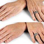 TOP 4 cách trị tàn nhang ở trên tay hiệu quả – Xóa đốm nâu trên da tay