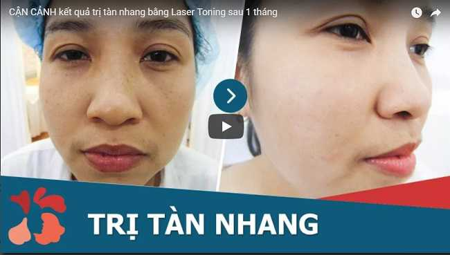 Video cận cảnh khách hàng trị tàn nhang bằng laser thành công