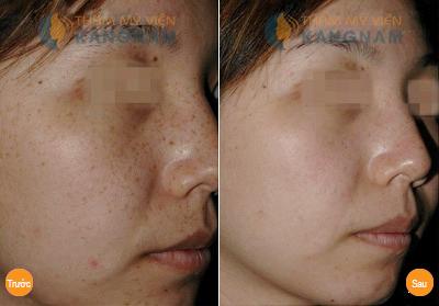 Kết quả điều trị tàn nhang bằng Laser Toning tại Kangnam