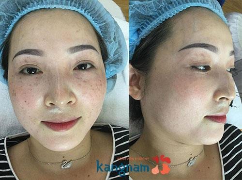 Đánh giá khách hàng sau trị tàn nhang bằng laser tại kangnam