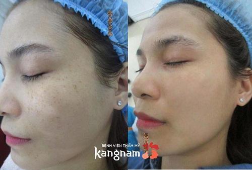 Đánh giá khách hàng sau trị tàn nhang bằng laser tại kangnam2