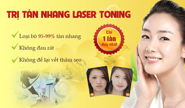 dieu-tri-tan-nhang-bang-lasesr-toning-kangnam