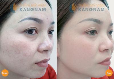 Kết quả trị tàn nhang của khách hàng tại TMV Kangnam