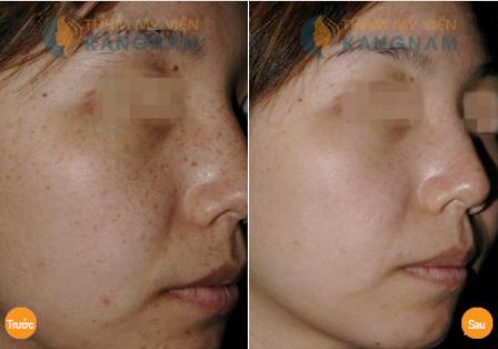 Kết quả trị tàn nhang hiệu quả tại TMV Kangnam
