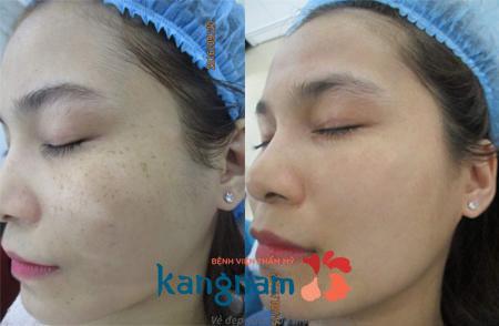 Kem tái tạo da sau khi tẩy tàn nhang 1