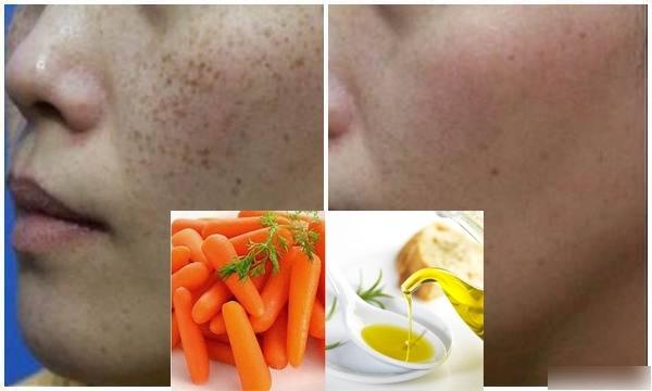 mặt nạ cà rốt trị tàn nhang 2