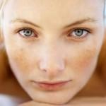 Sự khác biệt giữa tàn nhang với nám da và cách trị tàn nhang hiệu quả