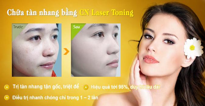 tàn nhang và cách chữa trị tàn nhang bằng laser toning