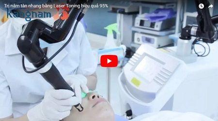 trị tàn nhang bằng laser2
