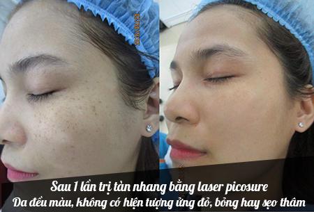 trị tàn nhang bằng laser picosure4