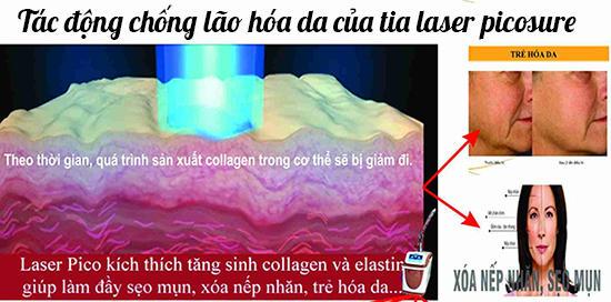 trị tàn nhang bằng laser picosure 2