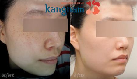 Những lưu ý sau khi trị tàn nhang trên mặt bằng công nghệ Laser Toning 7