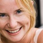 Trị tàn nhang ở tuổi dậy thì cách nào hiệu quả?
